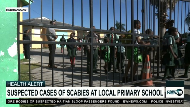 Primary school closes following allegations of scabies outbreak