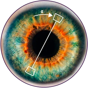 Analizador Galilei G4