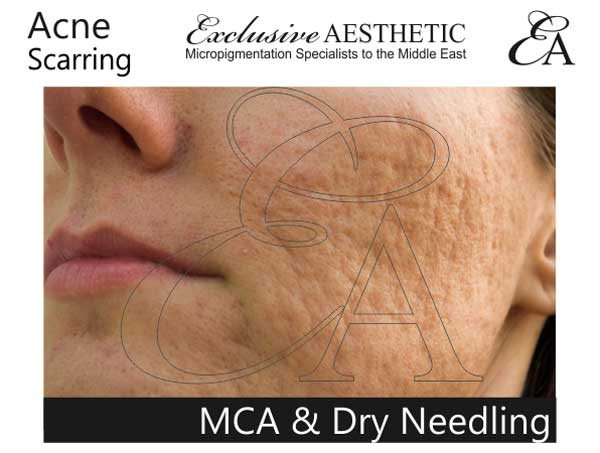 MCA-Dry-Needling
