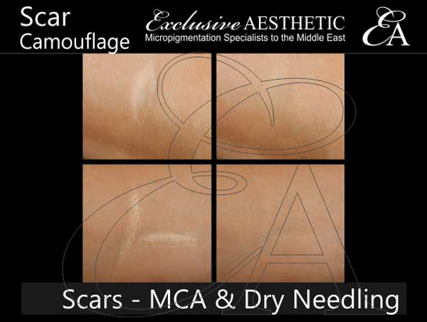 Scar-Removal-using-MCA-Dry-Needling-2