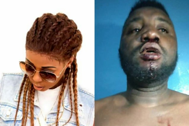 Black Mystiq, Star Zee and Daddy G aka Technique were badly attacked on Friday by thugs