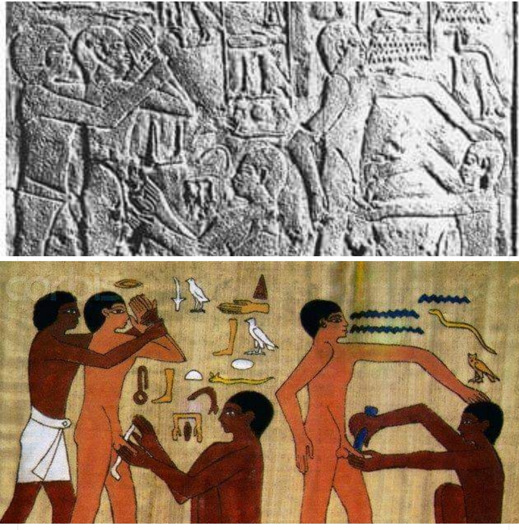 circumcision old Egypt