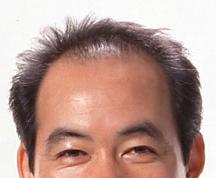 exoderm cosmetic surgeries exoderm peel fue biofibre hair transplantation