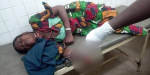 Yobe man arrested for cutting wife hand  |exoticempire.com.ng