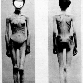 anorexia sufferers