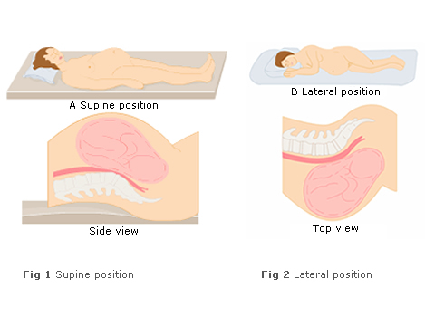 lateral versus supine