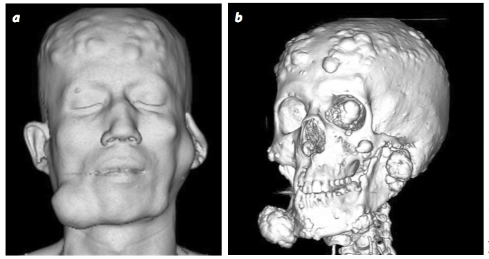 Resultado de imagen para sindrome de gardner