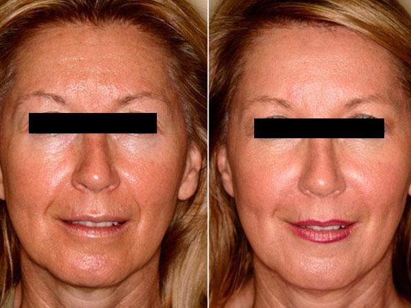 ᐉ Озонотерапия в косметологии: отзывы, видео, показания ...