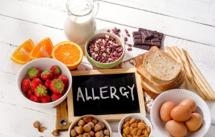 hair test for food allergy