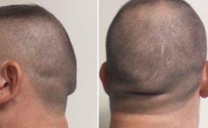 occipital-knob-deformity-dr-barry-eppley-indianapolis