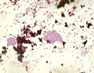 Microscopic view. Magnification 400x. The purple cells are a colony of bacteria
