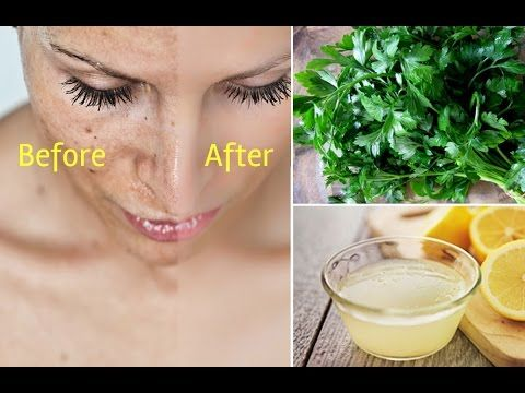 how to remove dark spots on face in 3 days