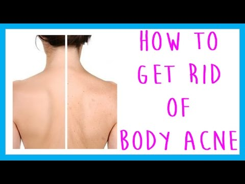 how to get rid of chest acne