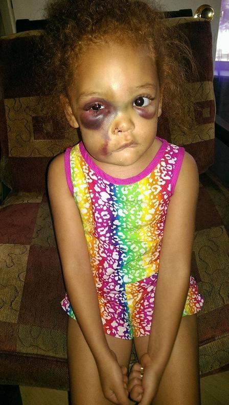 Menina sofreu graves ferimentos