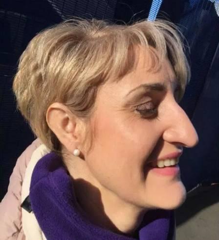 xblog nose 4.jpg.pagespeed.ic.Z53ToiGEQE - Jornalista lança campanha para pôr fim ao preconceito contra nariz grande