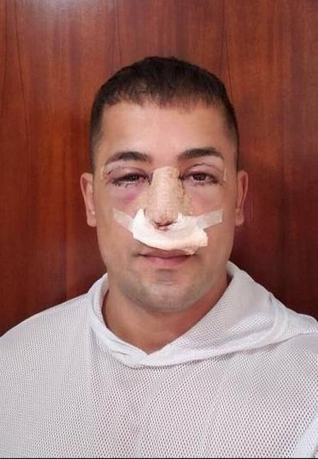 Tiago underwent blepharoplasty, which consists of removing the eyelids, and rhinoplasty, to thin the nose