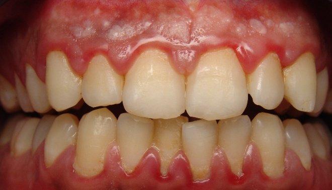 diş eti iltihabı neden olur