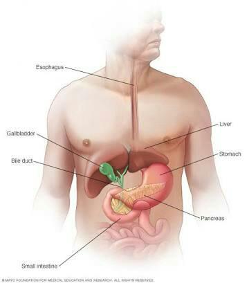 Pankreas kanseri neden olur