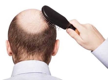 saç dökülmesi nedir ve neden olur