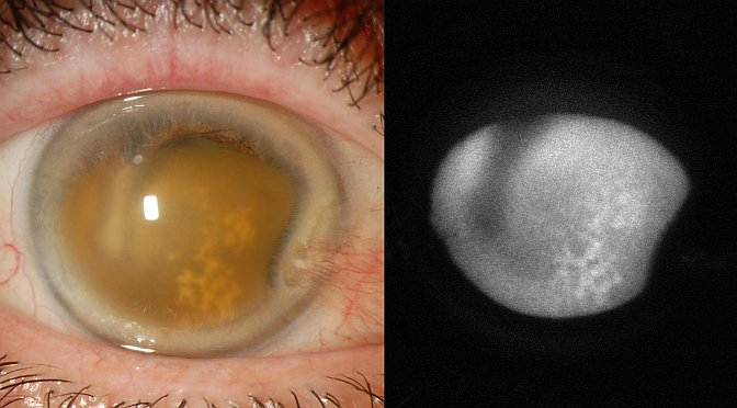 Ocular Autofluorescence – More Than Just the Fundus
