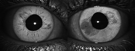 iris atrophy3