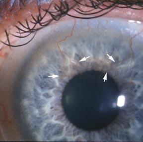 De nieuwe bloedvaten in het hoornvlies zijn duidelijk zichtbaar bij de witte pijlen.  © http://myfunnyvalentineblog.com