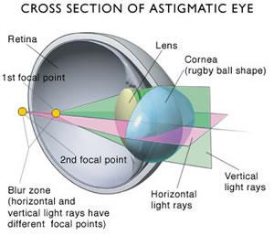 3D-model van een oog met een cilinder.