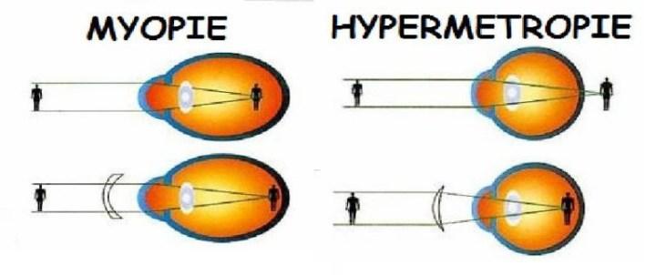 De vorming van het beeld op het netvlies bij een myoop en een hyptermetroop oog.
