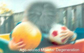 How to Reverse Macular Degeneration Naturally
