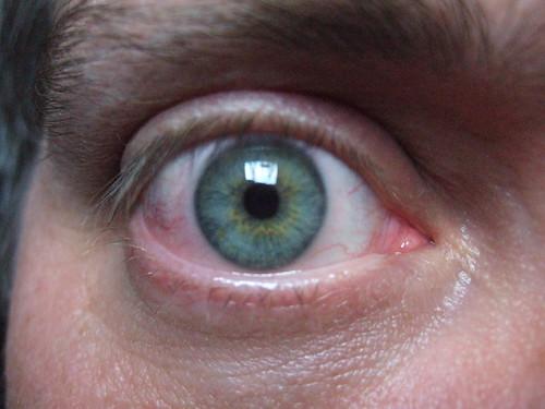 dry eyes image