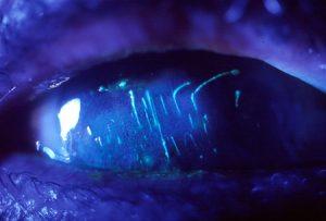 Linear corneal abrasion