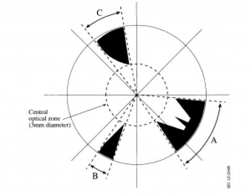 Grading cortical cataract