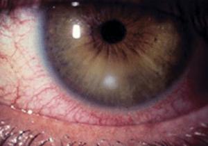 Small corneal ulcer