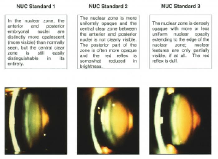 Grading nuclear cataract