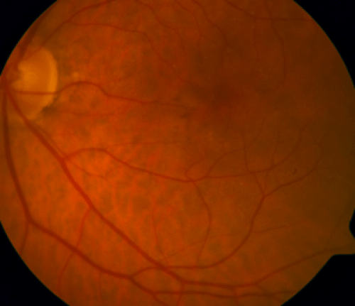 Early AMD with small drusen and pigmentary changes