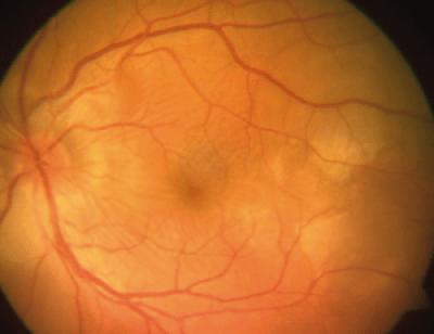 Serous retinal detachment