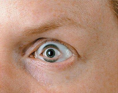 eye within an Eye