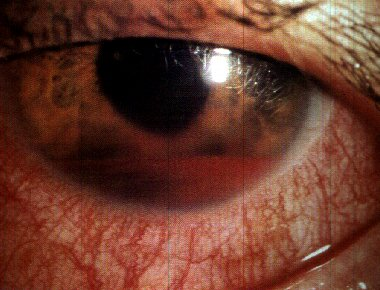 eye trauma # 25