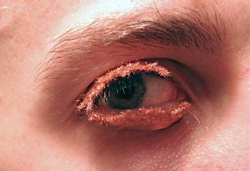 Krusty eyelid