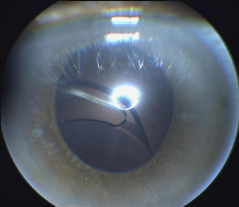 Retinal detachment #2