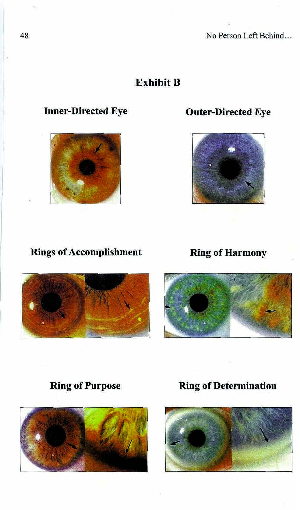 various eye features