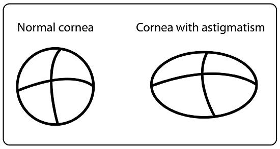 astigmatism-image