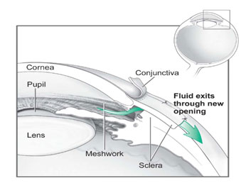 conventional_glaucoma_surgery