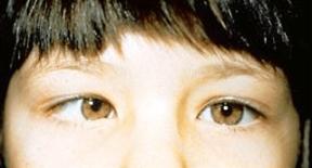 vl-esotropia