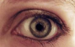 tired-eye
