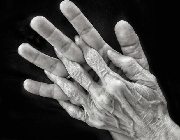 Атрофия кожи у пожилых людей. Обзор болезни