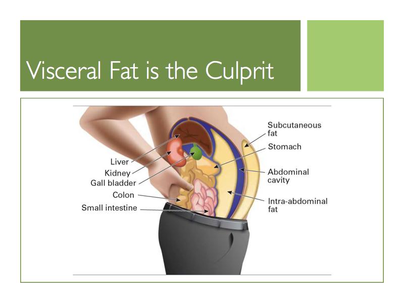 Síndrome metabolico y el riesgo de diabetes y enfermedades cardiacas