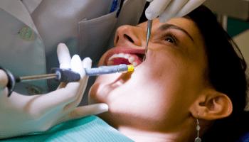 Técnica Anestésica Maxilar