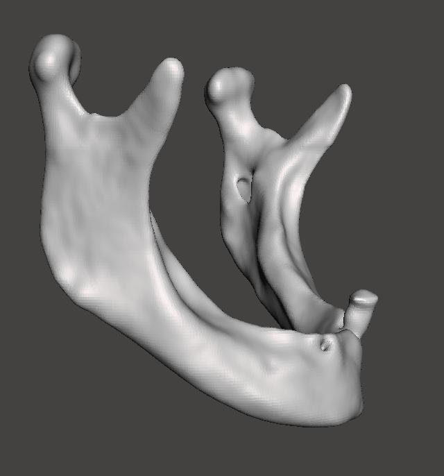 Visualización del modelo tridimensional virtual posterior al suavizado superficial y remoción de artefactos