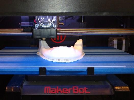 Impresión 3D de Mandíbula Humana